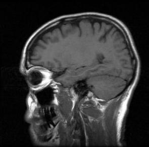 language learning brain scan
