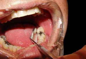 dentist mercury fillings
